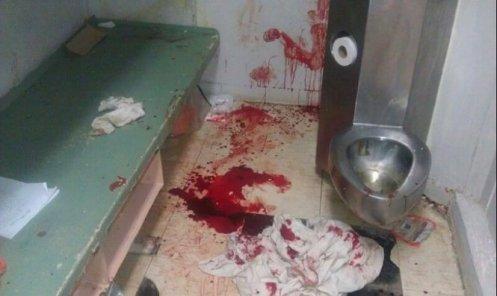 OPP Cell After June 6 Stabbing